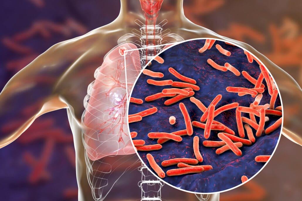 fibercel tuberculosis outbreak